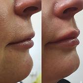 lip filler1.jpg