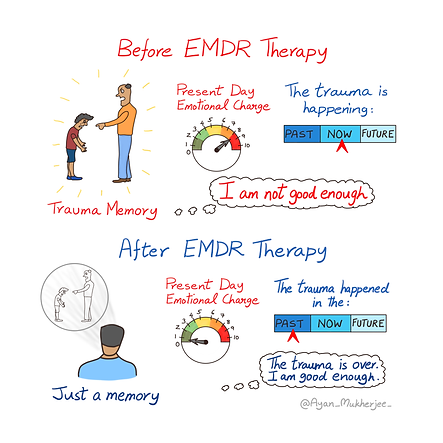 15-EMDR-Therapy-Before-After-Etsy.png