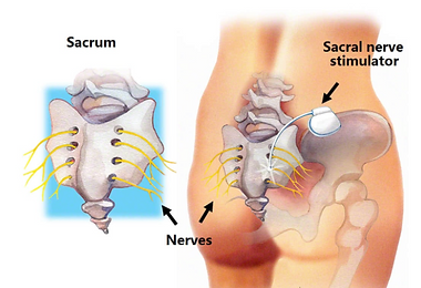 SNS can b used to improve symptoms of anal incontinence