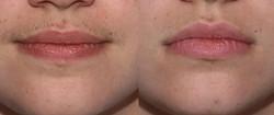 laser-hair-removal-upper-lip