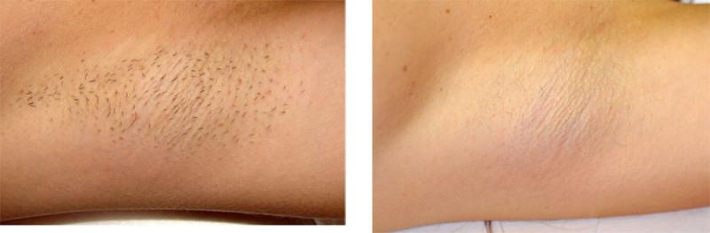 laser-hair-removal-underarm[1]