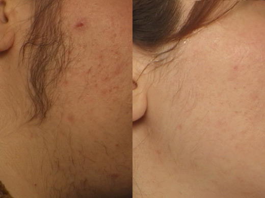 laser-hair-removal-2[1]