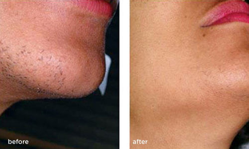 Advanced Women S Healthcare Laser Hair Removal
