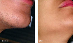 laser-hair-removal-before-after-female1[1]
