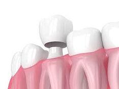Corona dental Guadalajara