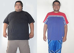 xpre-post-bypass-gastrico.jpg.pagespeed.
