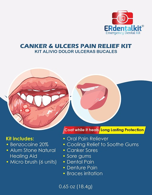 kit-canker-and-ulcers-pain-fron-Rr.jpg