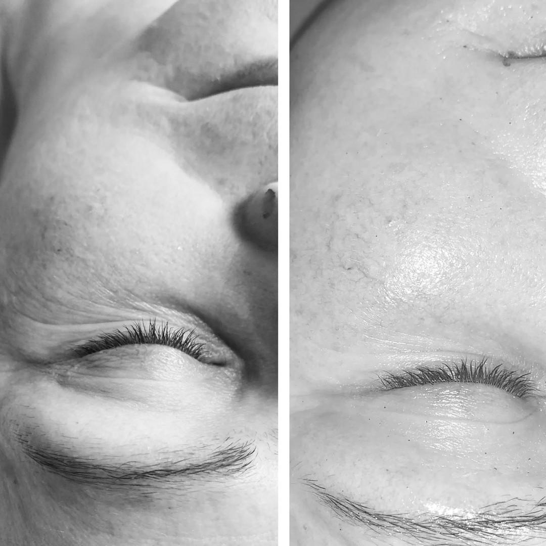 facial correction sharon.jpg