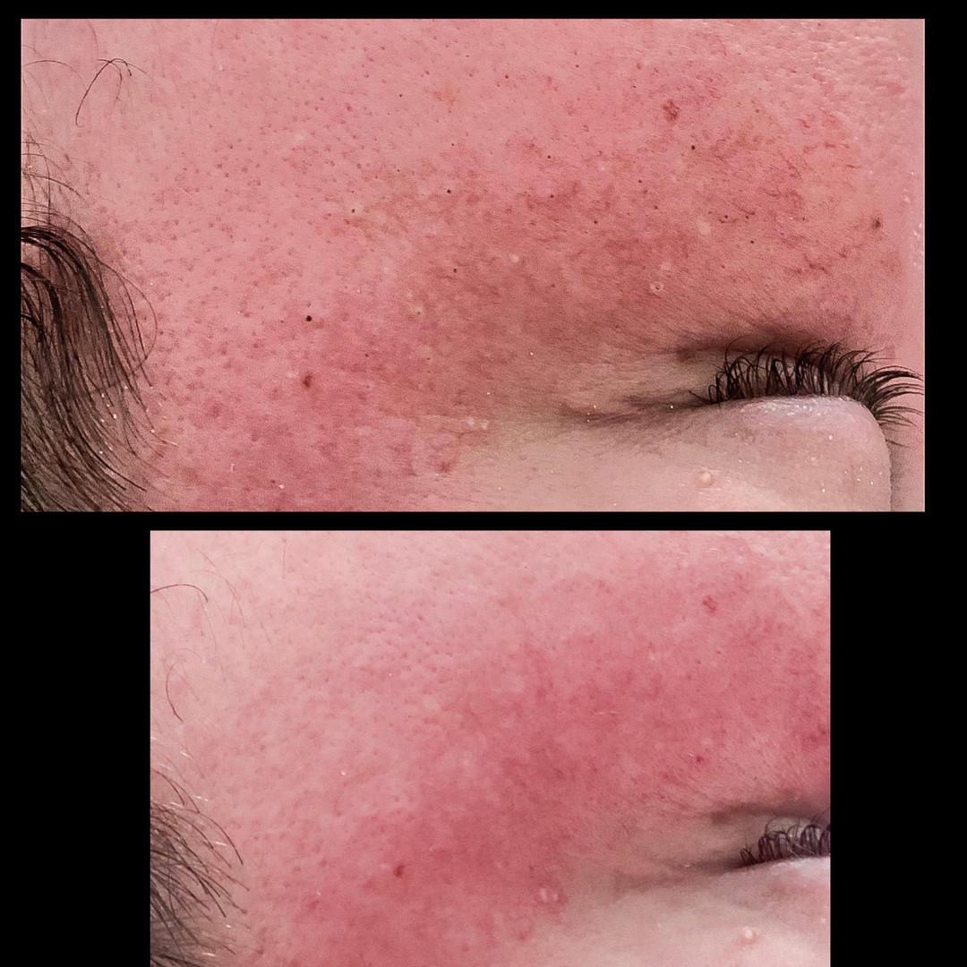 facial correction amber.jpg