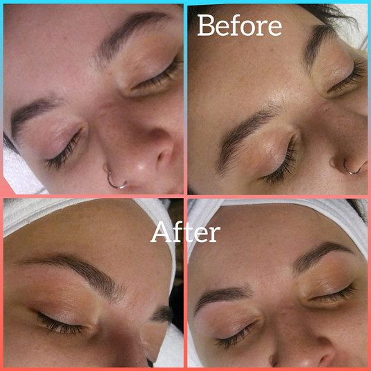 Brow Before & After
