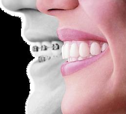 ortodonti-1_edited.png