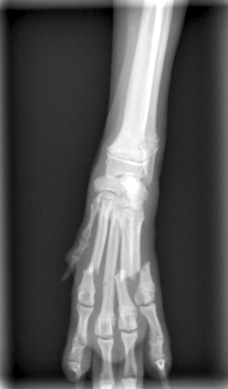 中手骨骨折1
