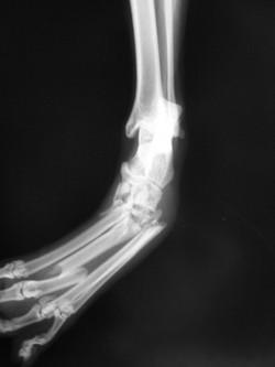 足根関節脱臼2-2