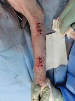 橈尺骨粉砕骨折7