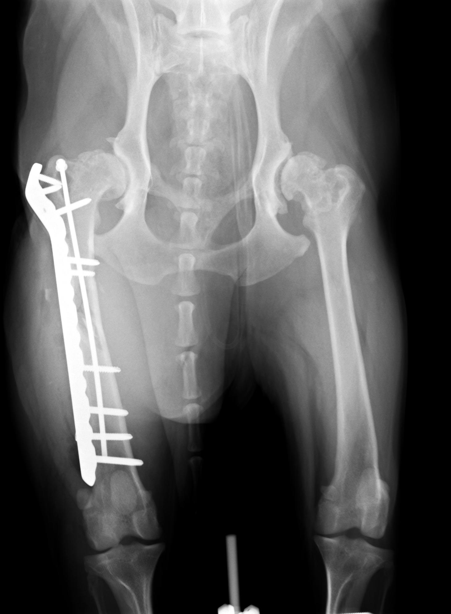 髄内ピンと骨プレート2