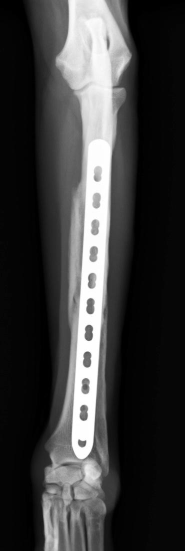 橈尺骨粉砕骨折6