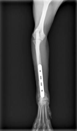 橈尺骨骨折4