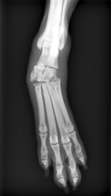 足根中足関節骨折亜脱臼1