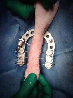 足根中足関節骨折亜脱臼3