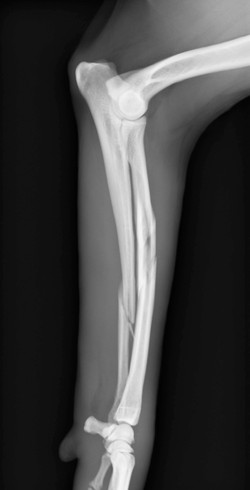 橈尺骨粉砕骨折1