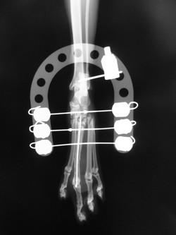 足根関節脱臼2-4