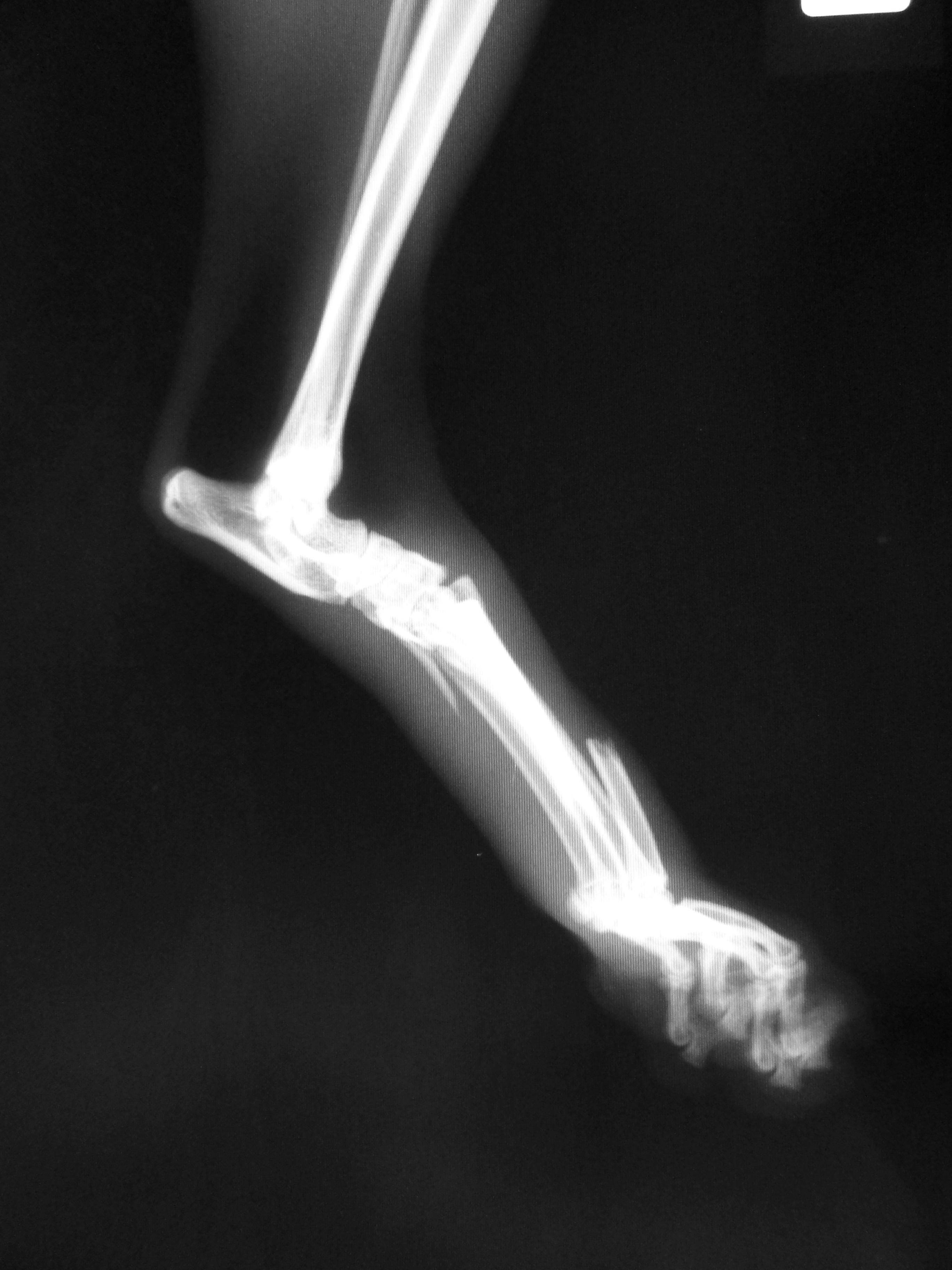 足根関節脱臼2-1