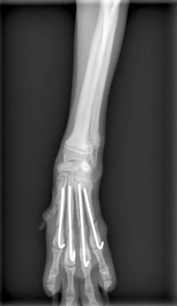 中手骨骨折2