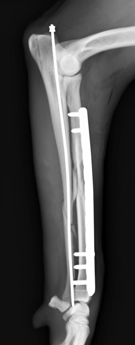 橈尺骨粉砕骨折3