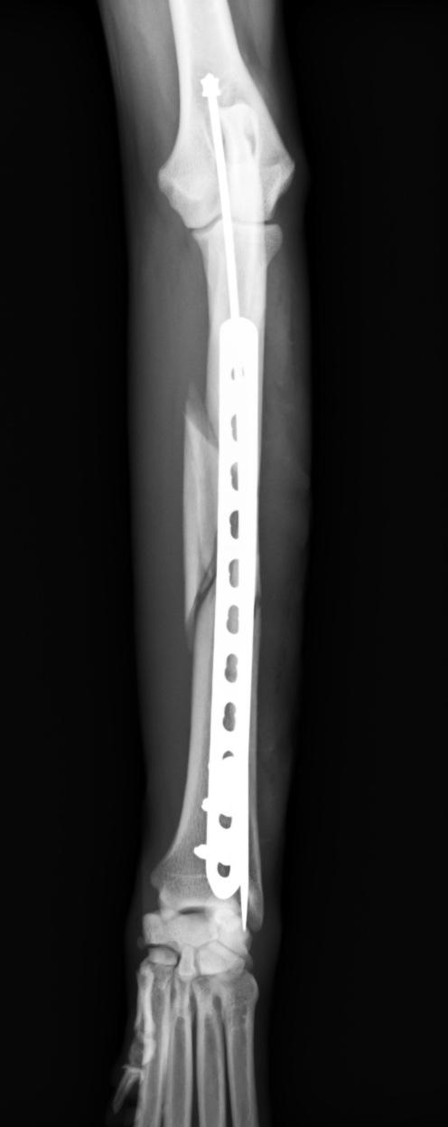 橈尺骨粉砕骨折4