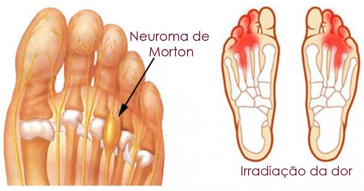 Neuroma-de-morton-768x403.png