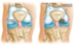 OSTEOCONDRITE-DISSECANTE.jpg