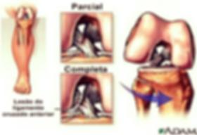 lesão ou ruptura do ligamento