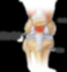 joelho-outras-lesoes-tendinite-patelar-1