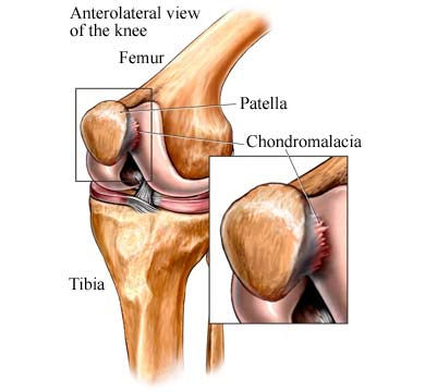chondromalacia-of-the-patella-02.jpg