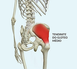 tendinite_do_glúteo_médio.png