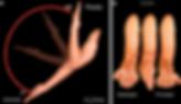 ruptura-biceps-1024x591.png