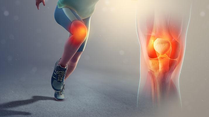rodilla-del-saltador-jumpers-knee.jpg