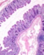 Mucosa layer of the large intestine with