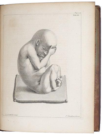 Noortwyk, Uteri humani gravidi anatome et historia, 1743, with 4 plates