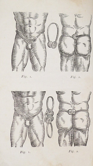 Curing hernias and masturbation: an extremely rare medical prospectus, ca. 1825