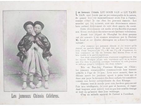 Siamese tweeling treedt op in Nederland en België