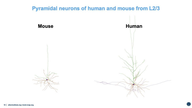 Human and mouse neurons