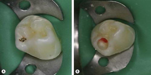 pulpotomija mlecnog zuba