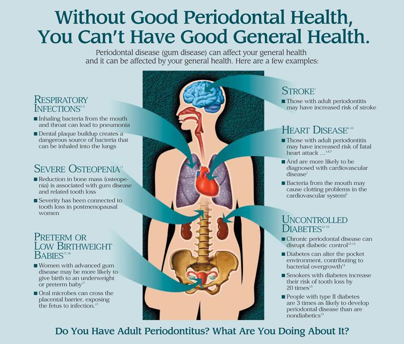 Kako parodontopatija utiče na Vaše opšte zdravlje?