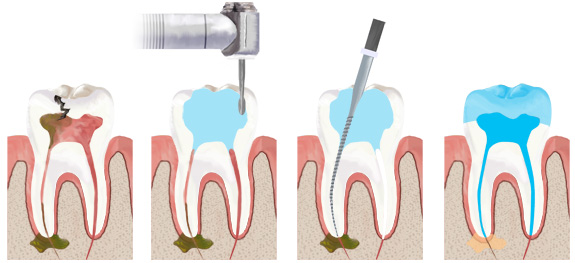 rootcanal_campbell