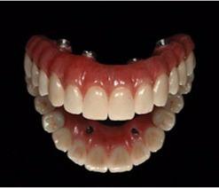 teeth-in-a-day_edited