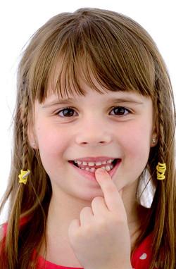 BELLE DENT vadjenje mlecnog zuba
