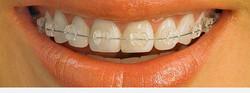 damon-clear-braces-1