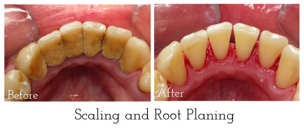 Scaling-and-Root-Planing-2