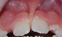 frenulum(resica) gornje usne